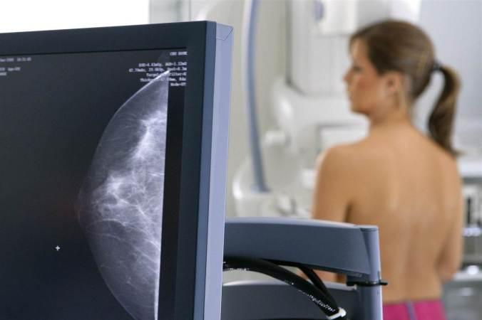 140624-mammogram-jsw-146p_ab49d1278d85242fb0d7e787333c6dee-nbcnews-fp-1200-800